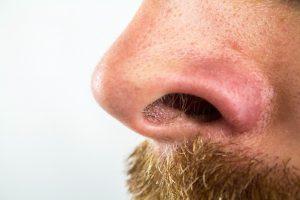 もう「鼻毛出てるよ」なんて言わせない!2つの鼻毛の手入れ法